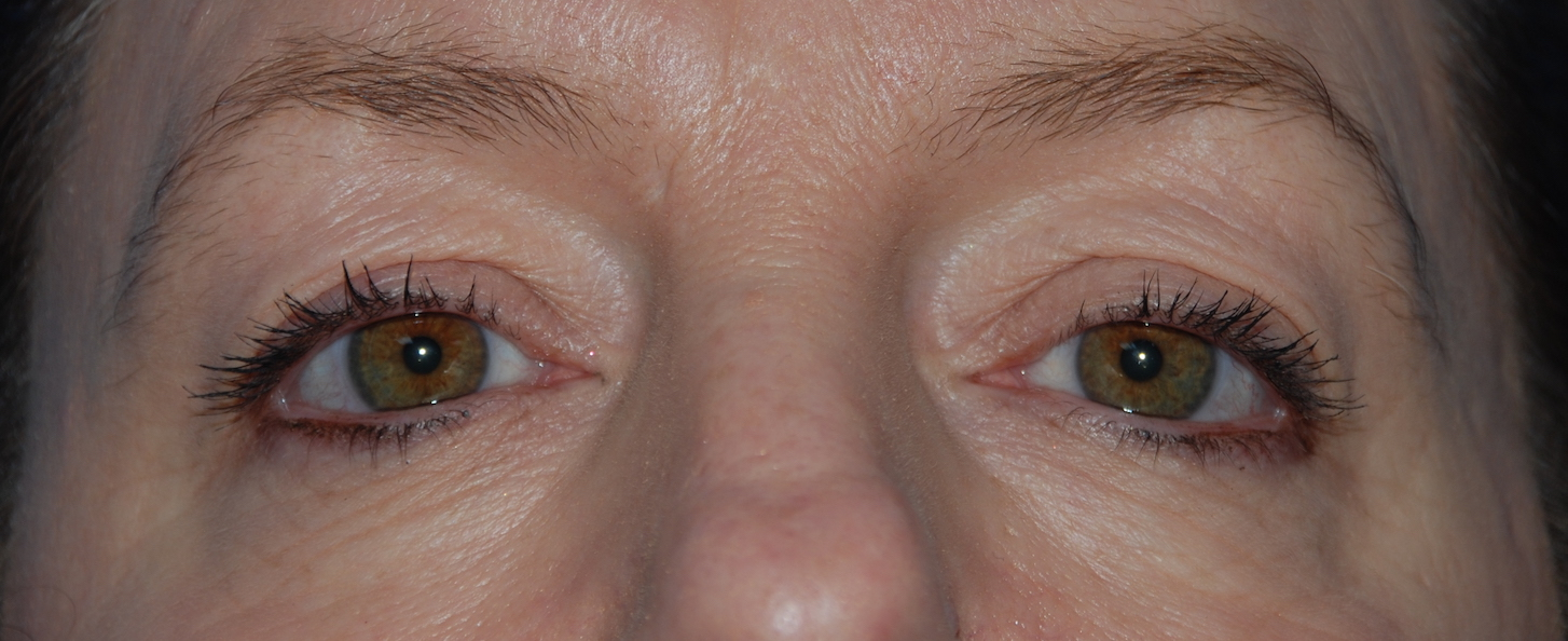 eyelid surgery cosmetic