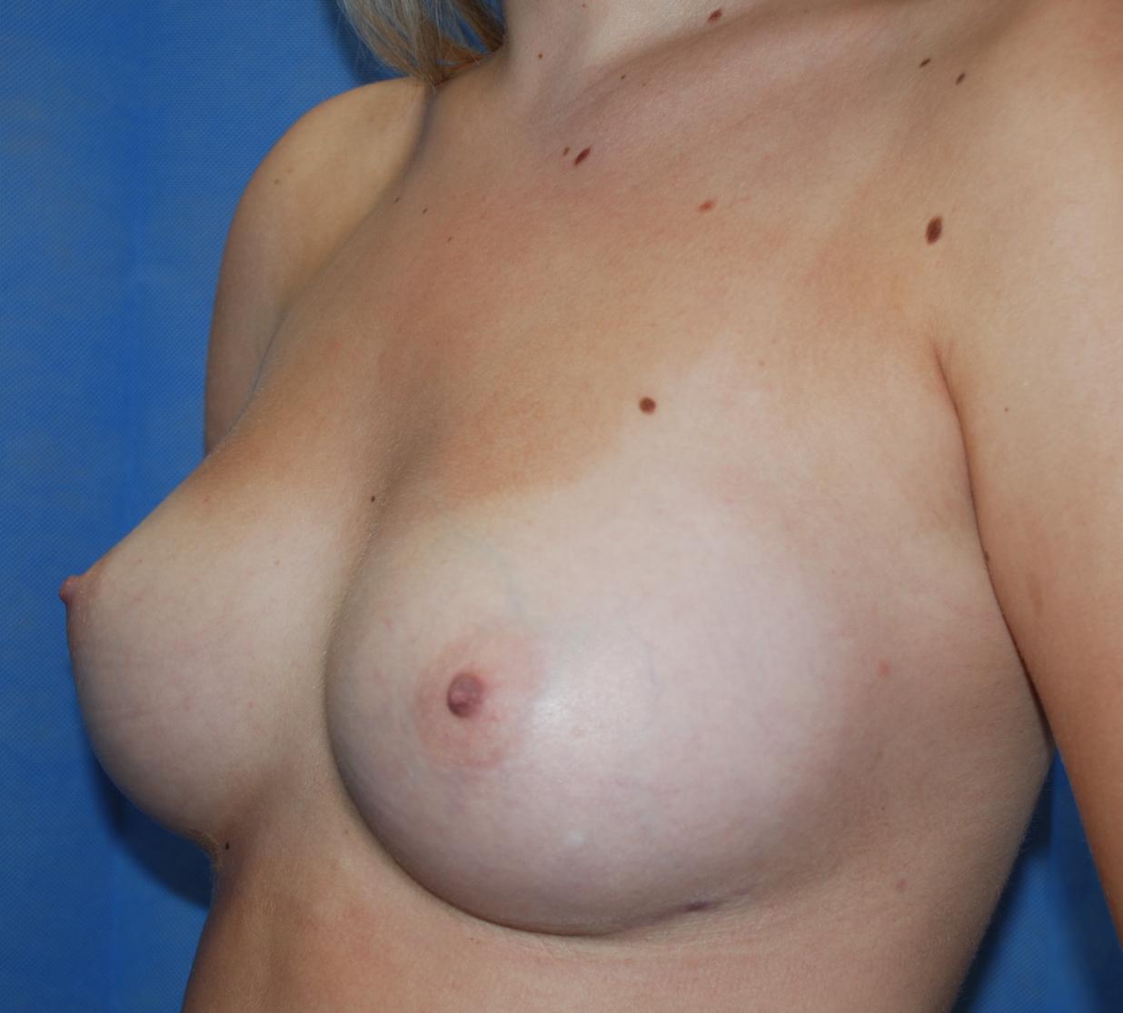 boobs bigger teardrom implant 375cc