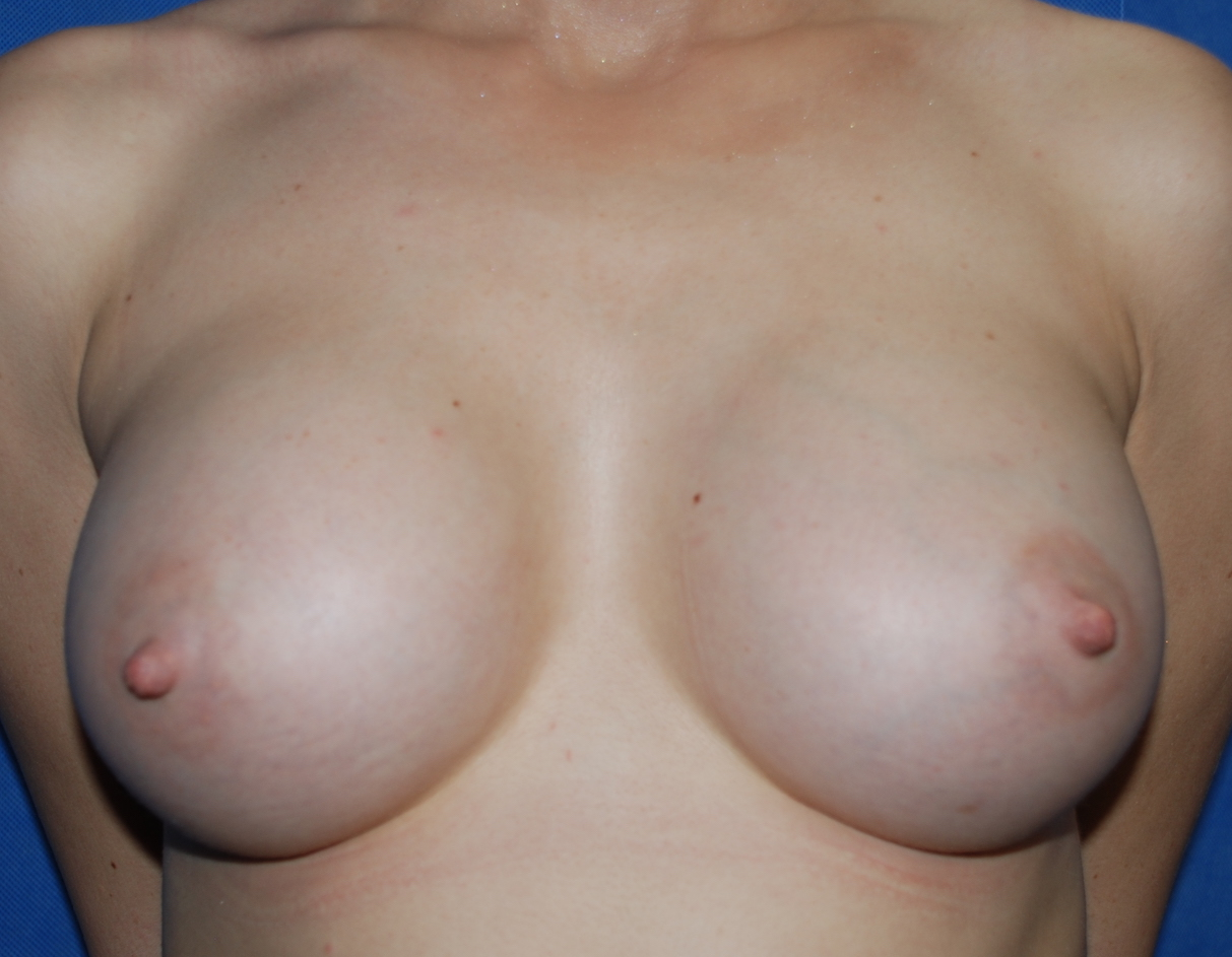 boob enlargement sussex harley cosmetic surgery