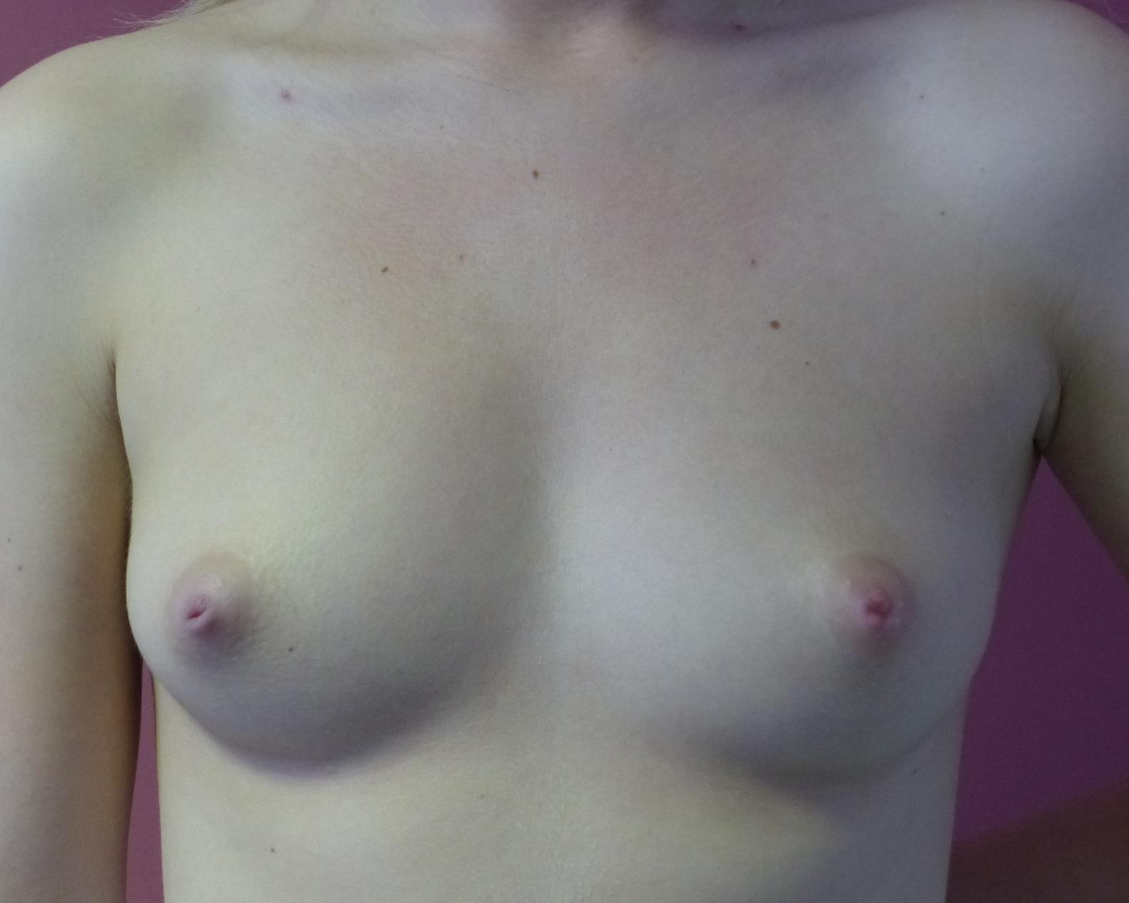 boob implants oliver harley cosmetic surgeon