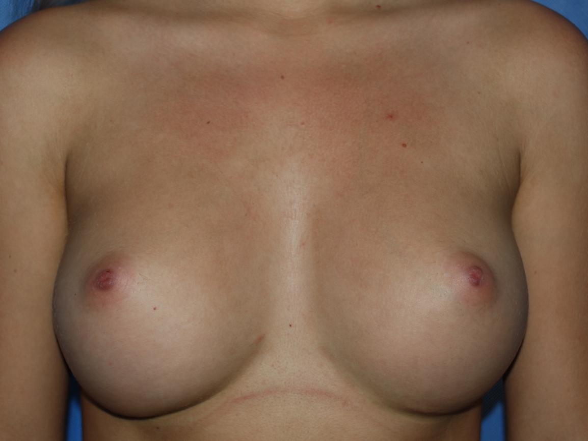boob implants tunbridge wells oliver harley