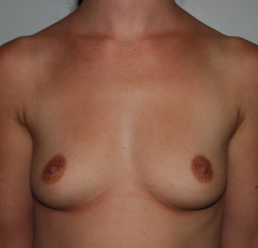 harley boob job