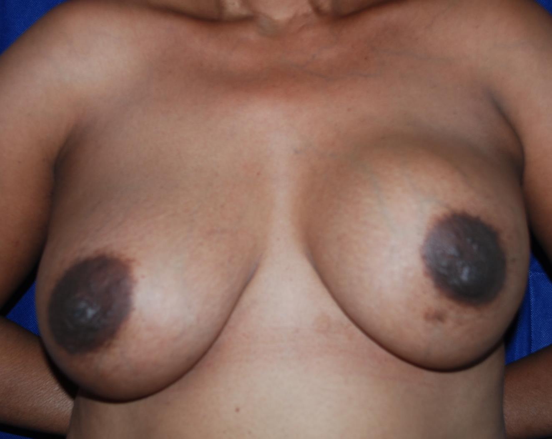 breast capsule implant exchange