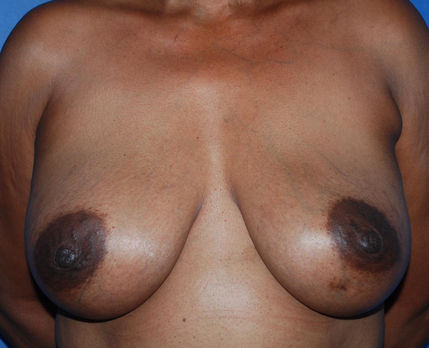 breast capsule treatment