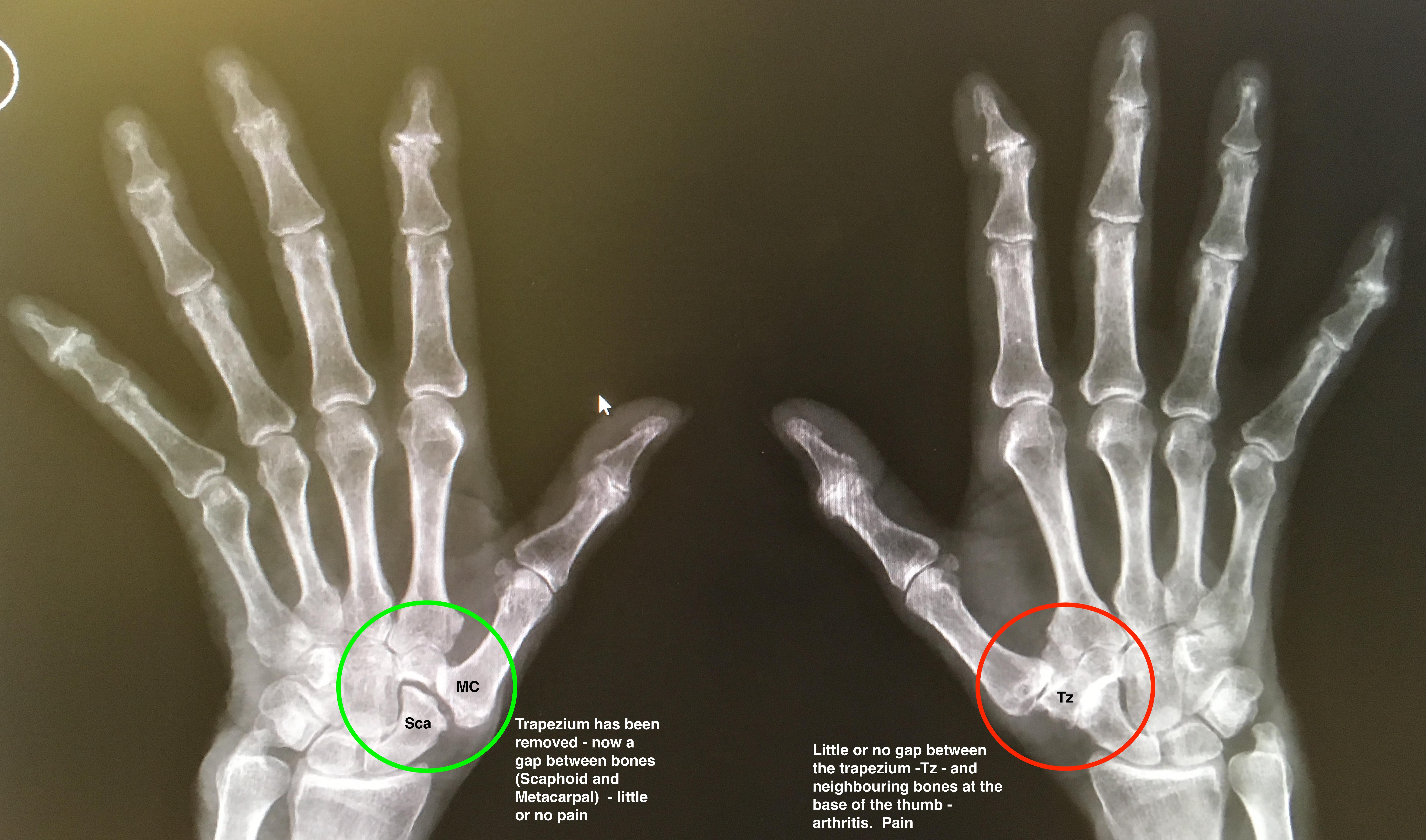 trapeziectomy thumb arthritis harley