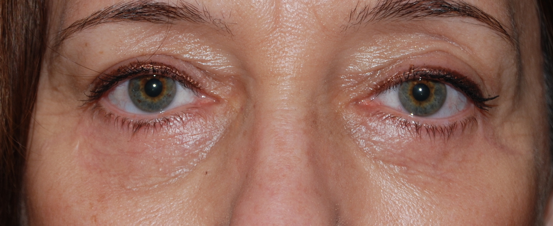 lower eyelid cosmetic surgery sussex