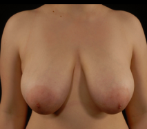 oliver harley plastic surgeron breast reduction before surgery