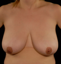 oliver harley plastic surgeon breast reduction 2 before