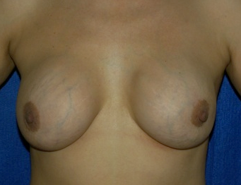 breast implant exchange pre - op
