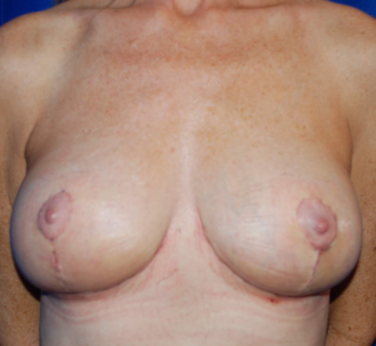 breast asymmetry correction harley cosmetic surgery