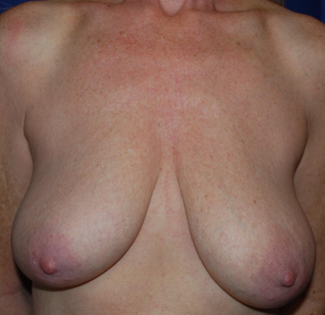 boobs different mcindoe centre sussex