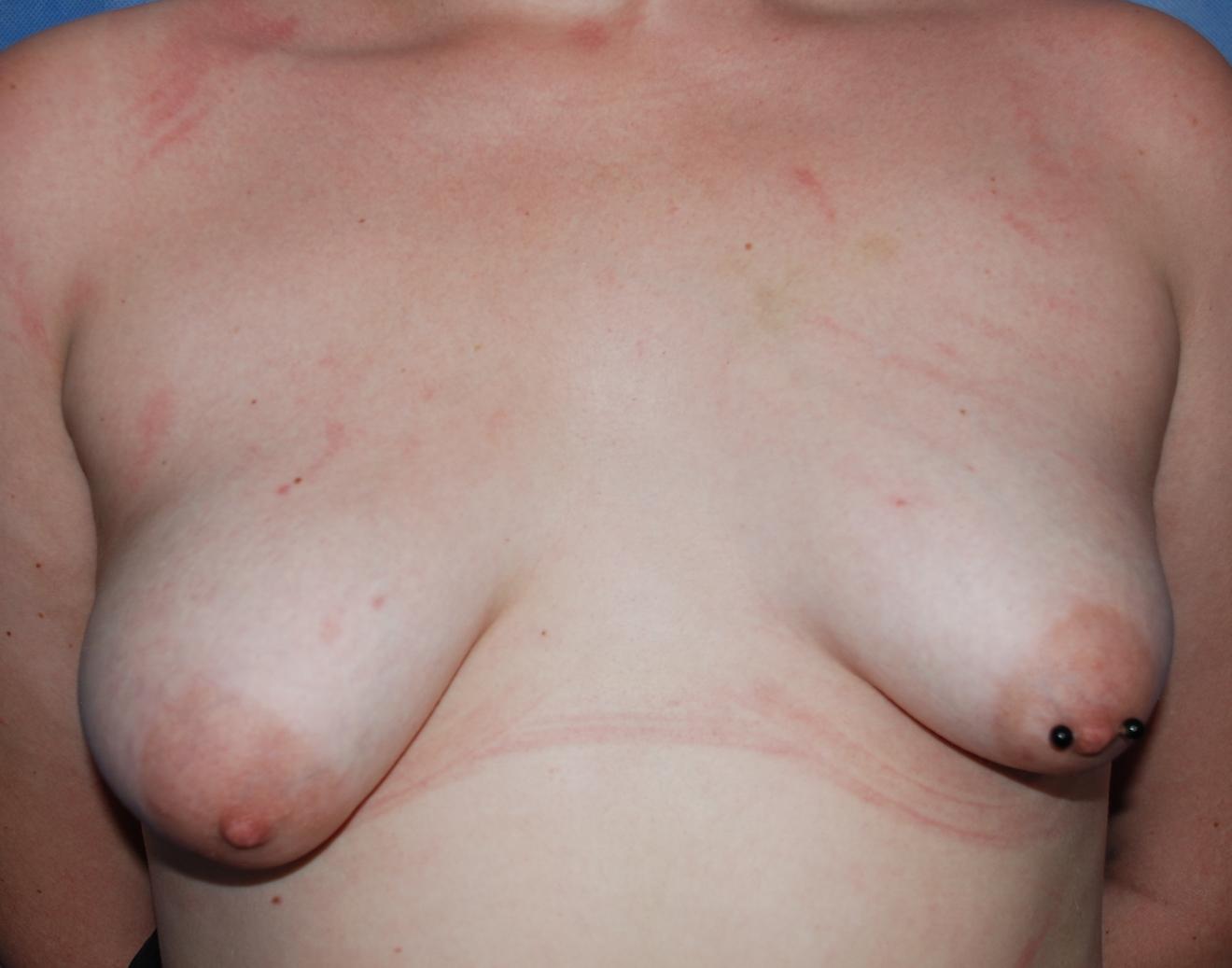 tubular breast asymmetry harley crawley cosmetic surgery