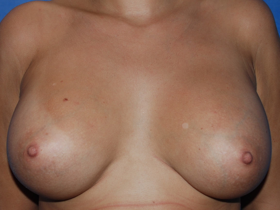 breast asymmetry boob job oliver harley