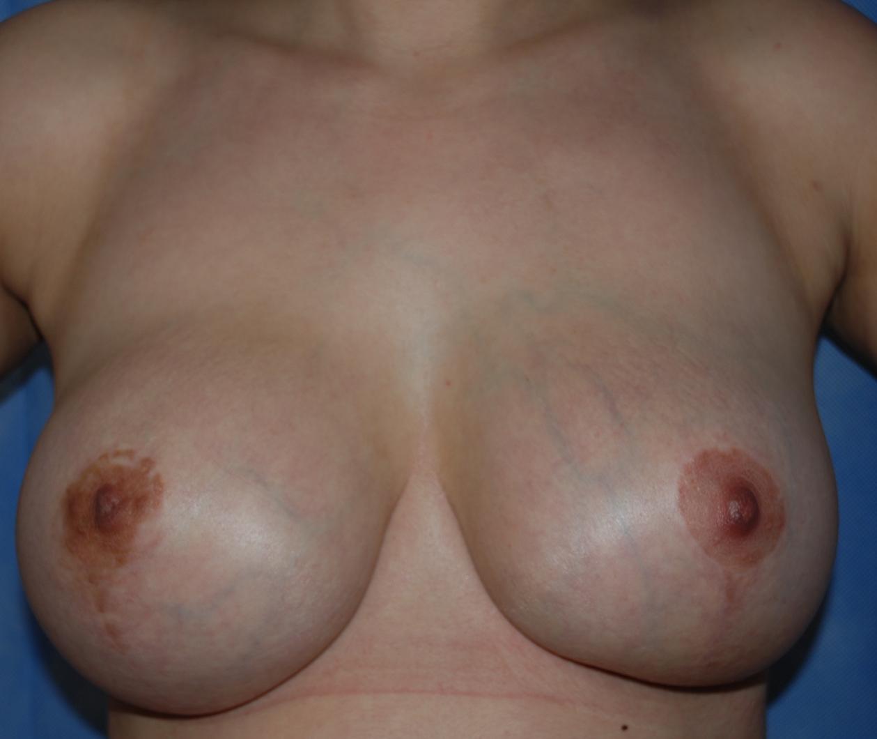 breast implant capsulectomy harley