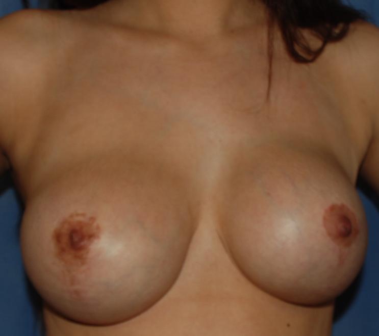 tight breast implant capsule