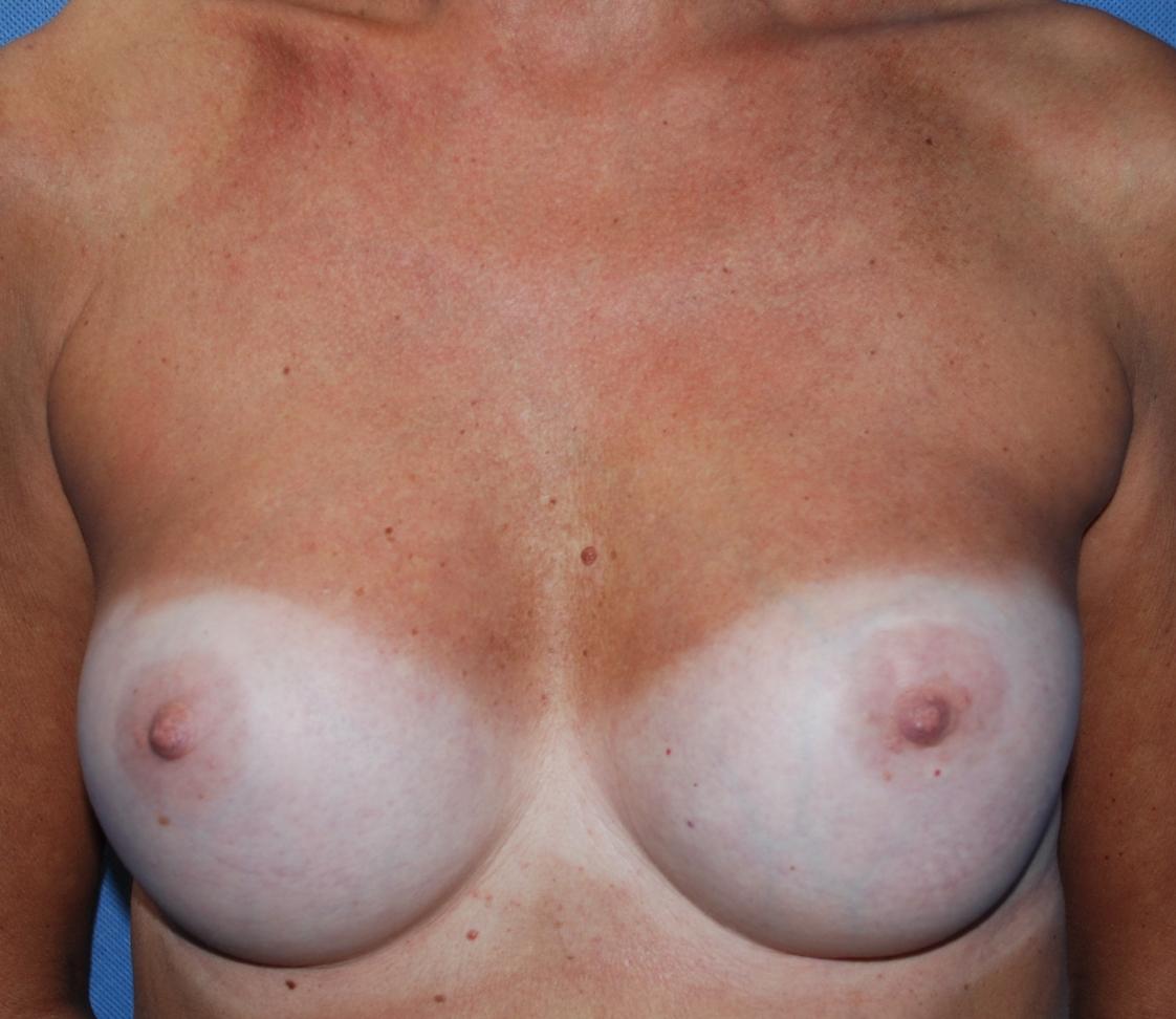 breast capsule surgery harley brighton