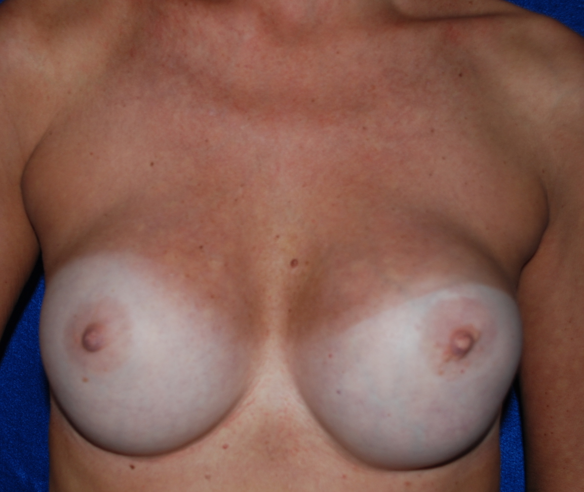 breast implant exchange and capsulectomy harley sussex