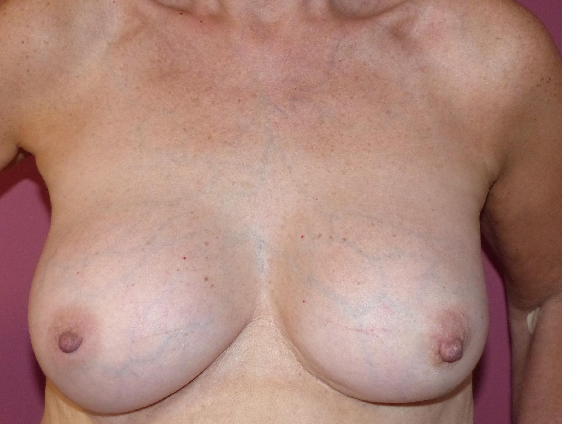 old breast implants harley