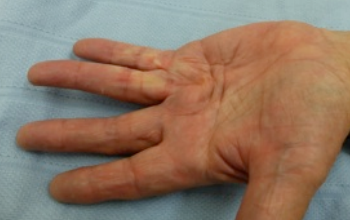 dupuytrens contracture before needle fasciotomy