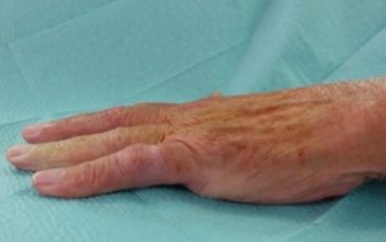 dupuytrens contracture treated successfully with needle fasciotomy