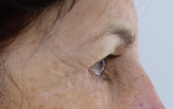 upper eyelid blepharoplasty harley