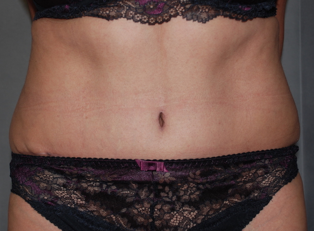 tummy tuck and liposuction harley cosmetic maidstone