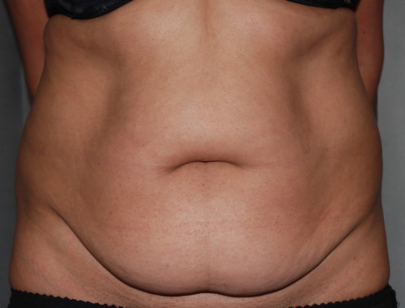 mummy tummy lipoabdominoplasty