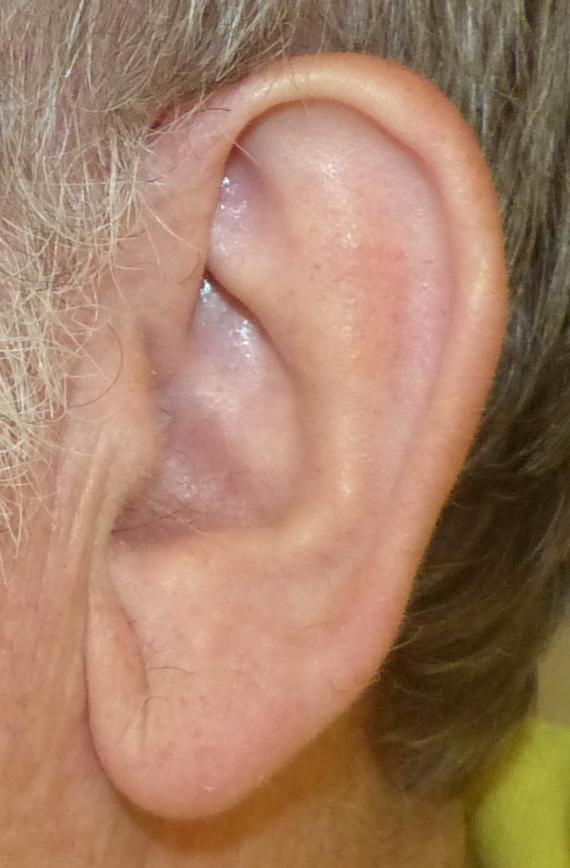 earlobe reduction harley brighton
