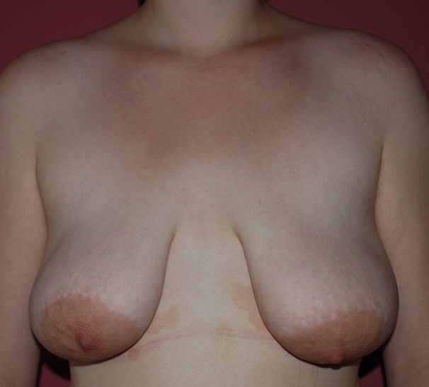 droopy 'ptotic' breasts, large nipple pads