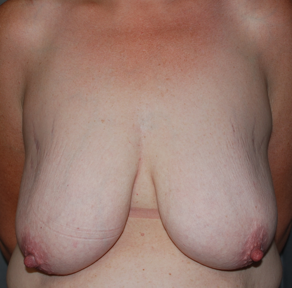 breast uplift oliver harley plastic surgery