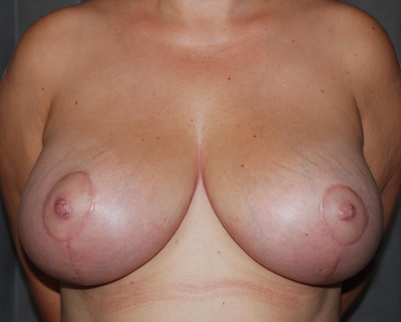 breast uplift Kims hospital oliver harley