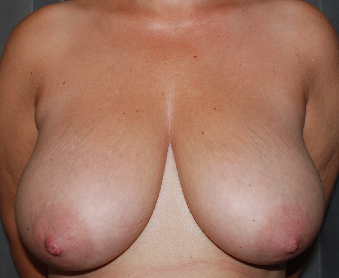 boob lift harely cosmetic surgery kent