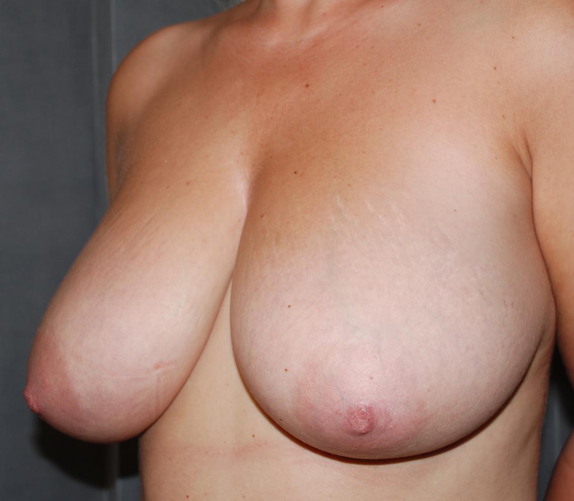 breast uplift maidstone oliver harley