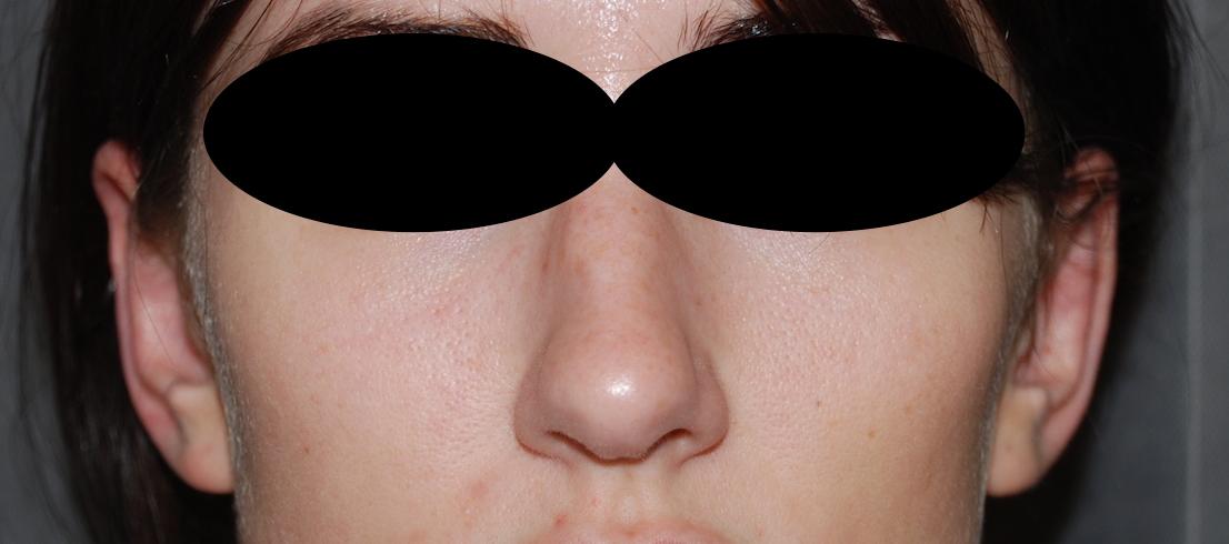 ear pinning pinnaplasty harley plastic surgery brighton