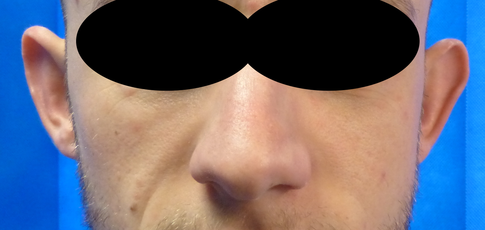 otoplasty ear correction