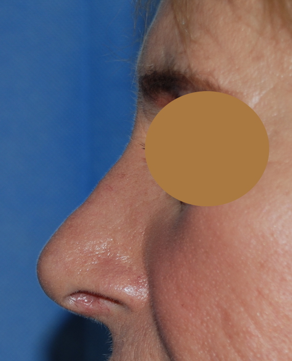 nose refinement rhinoplasty harley cosmetic sussex