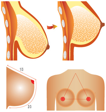 breast uplift diagram