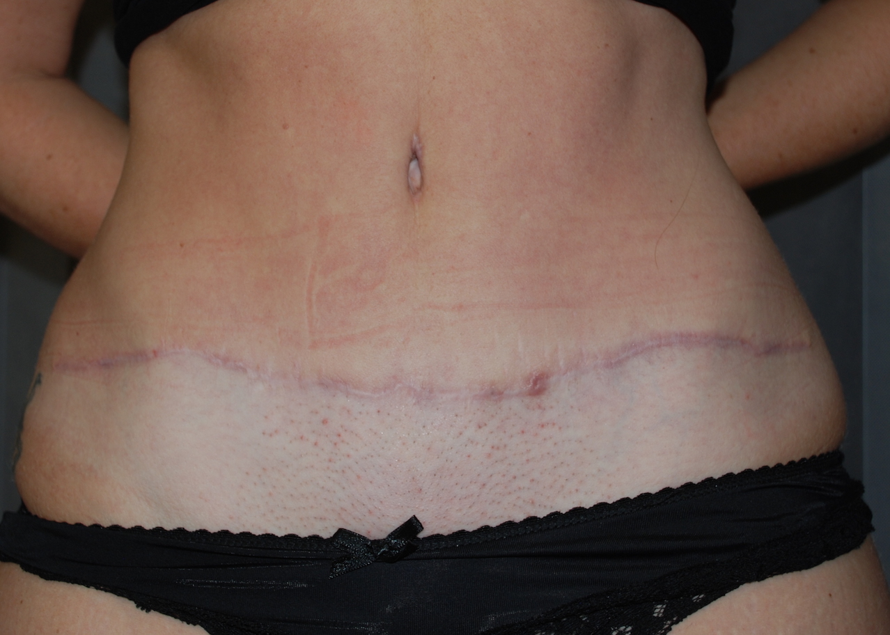 tummy tuck KIMS hospital harley
