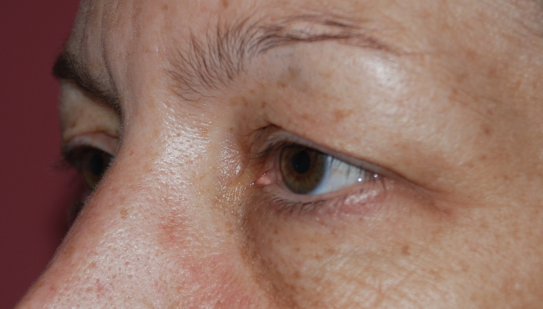 eyelid folds cosmetic surgery