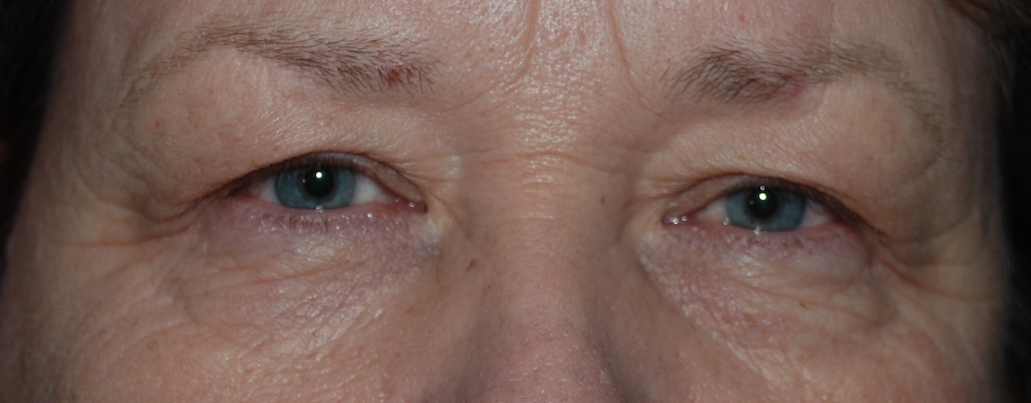 upper blepharoplasty mcindoe centre sussex
