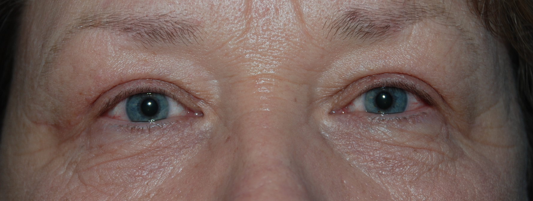 upper eyelids mcindoe centre east grinstead