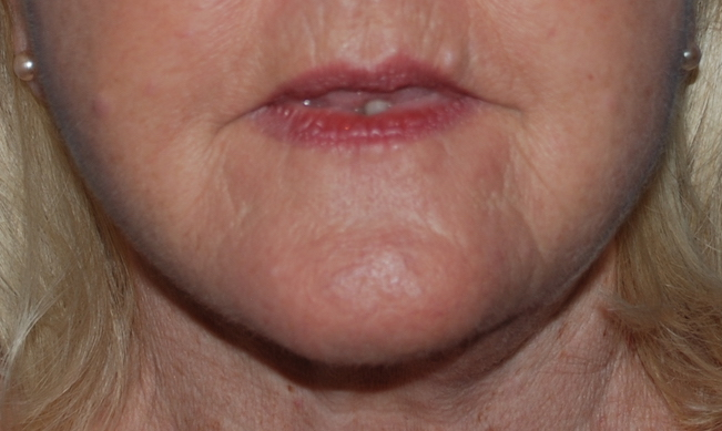 facelift cosmetic surgery sussex
