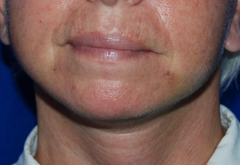 face lift oliver harley KIMS hospital maidstone