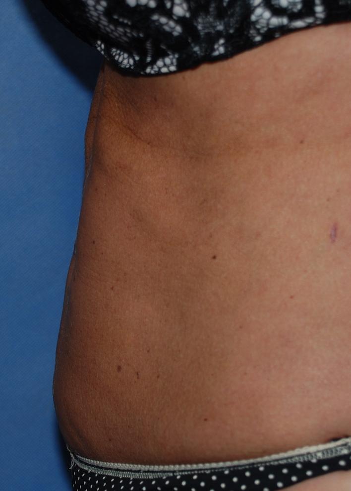 liposuction oliver harley cosmetic croydon