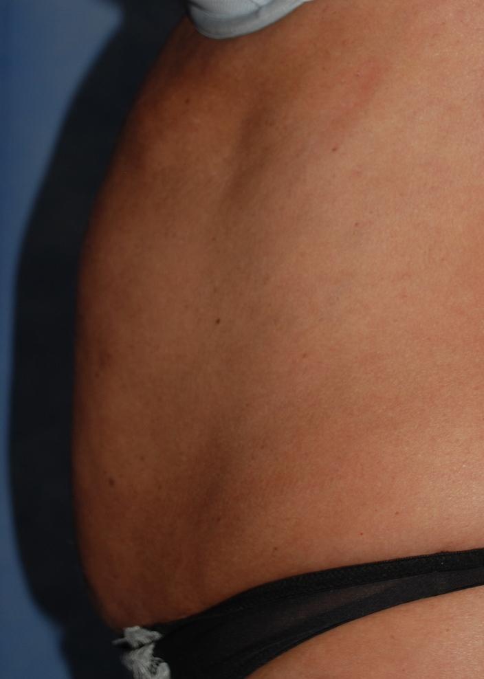 liposuction harley cosmetic surgery crawley