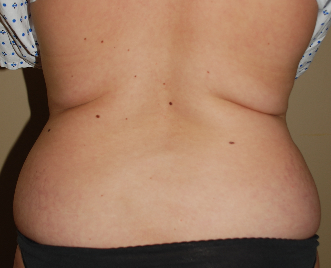 liposuction hips cosmetic surgery sussex