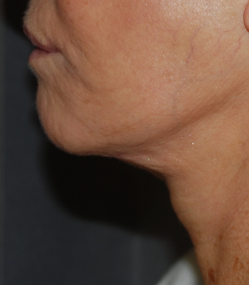neck lift harley cosmetic surgery