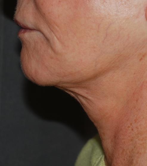 neck lift platysmaplasty harley kent KIMS hospital