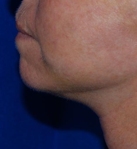 neck skin tightening harley brighton