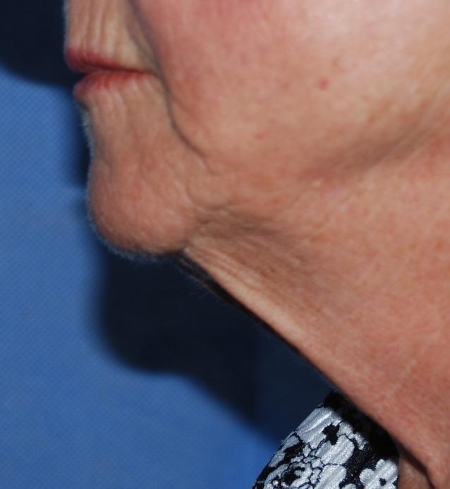necklift croydon harley